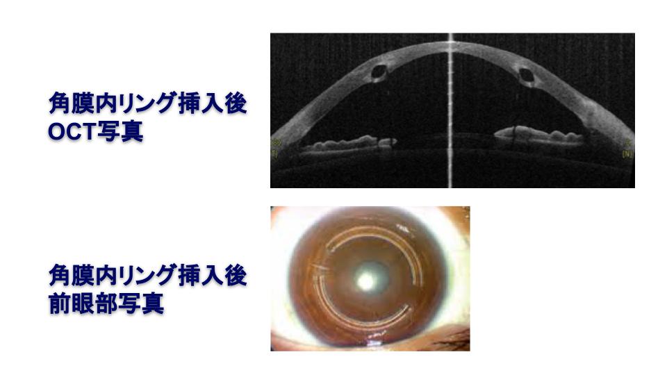 角膜内リング挿入後OCT写真(上)
