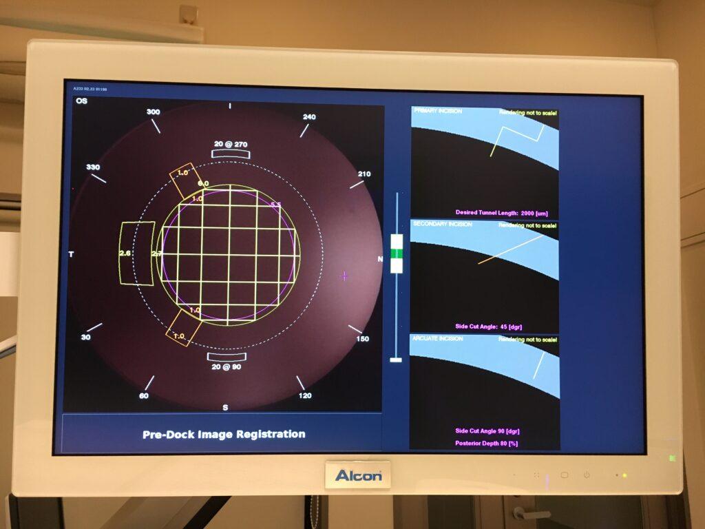 フェムトセカンドレーザーの手術設計UI。デジタル制御されているのが一目瞭然。