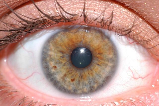 網膜色素変性症の解説