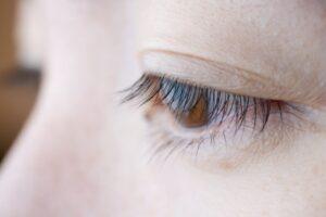 瞼の垂れる原因